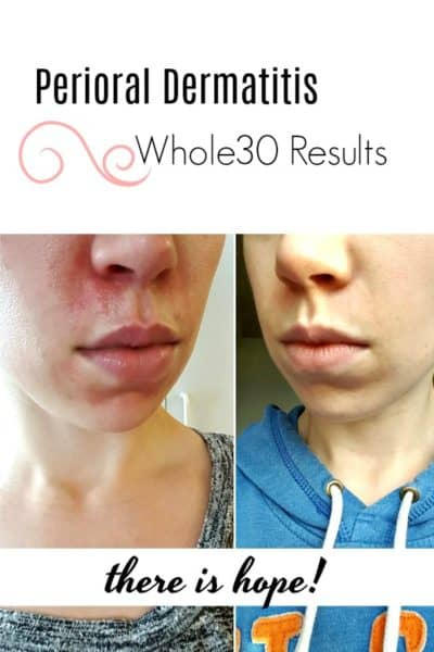 Perioral Dermatitis results from Whole30